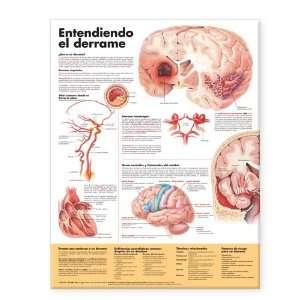 qué es un derrame) (9781587799907) Anatomical Chart Company Books