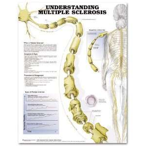Multiple Sclerosis Disease Chart: Industrial & Scientific
