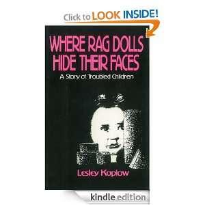 Where Rag Dolls Hide Their Faces Lesley Koplow  Kindle